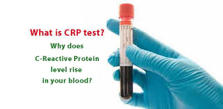 Get a C-Reactive Protein (CRP) Blood Test